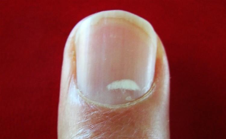 Las manchas blancas en las uñas pueden ser causadas por problemas de salud